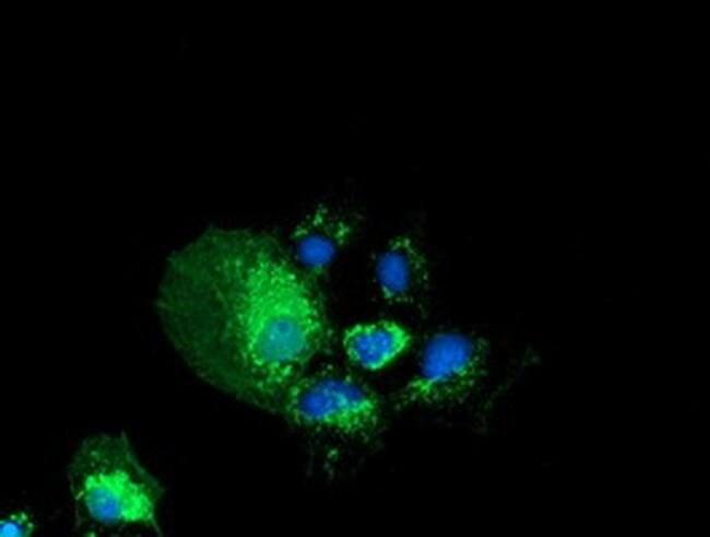PYCR2 Mouse anti-Human, Clone: OTI2F11, liquid, TrueMAB  100 µL; Unconjugated