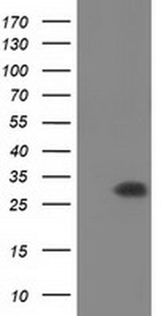 PYCR2 Mouse anti-Human, Clone: OTI5B7, liquid, TrueMAB  100 µL; Unconjugated