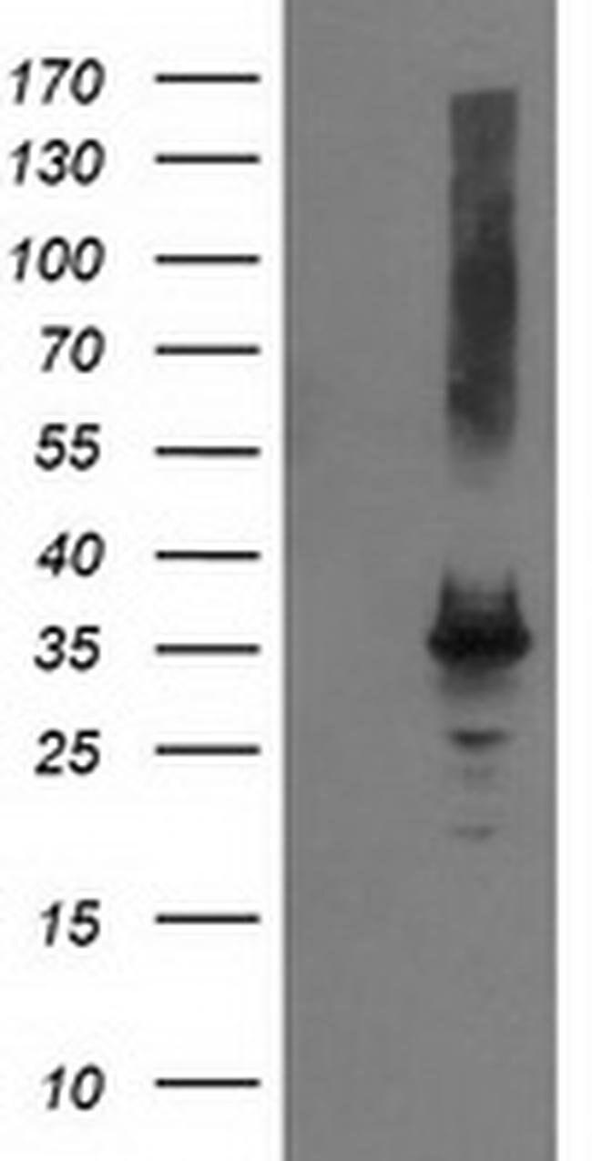PYCR2 Mouse anti-Human, Clone: OTI2B11, liquid, TrueMAB  100 µL; Unconjugated