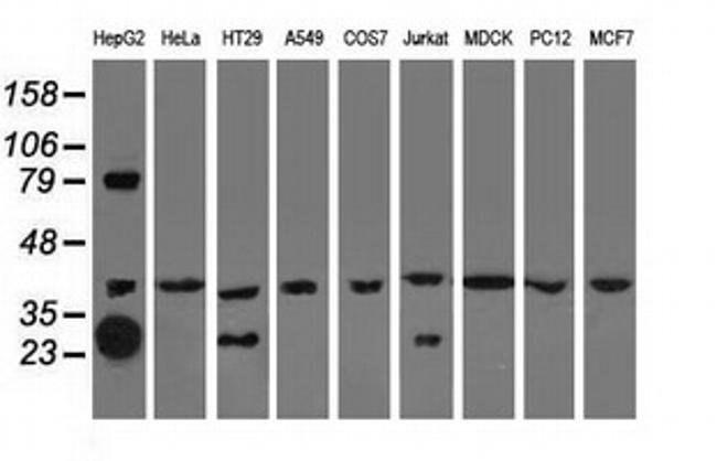 QPRT Mouse anti-Human, Clone: OTI4E5, liquid, TrueMAB  100 µL; Unconjugated
