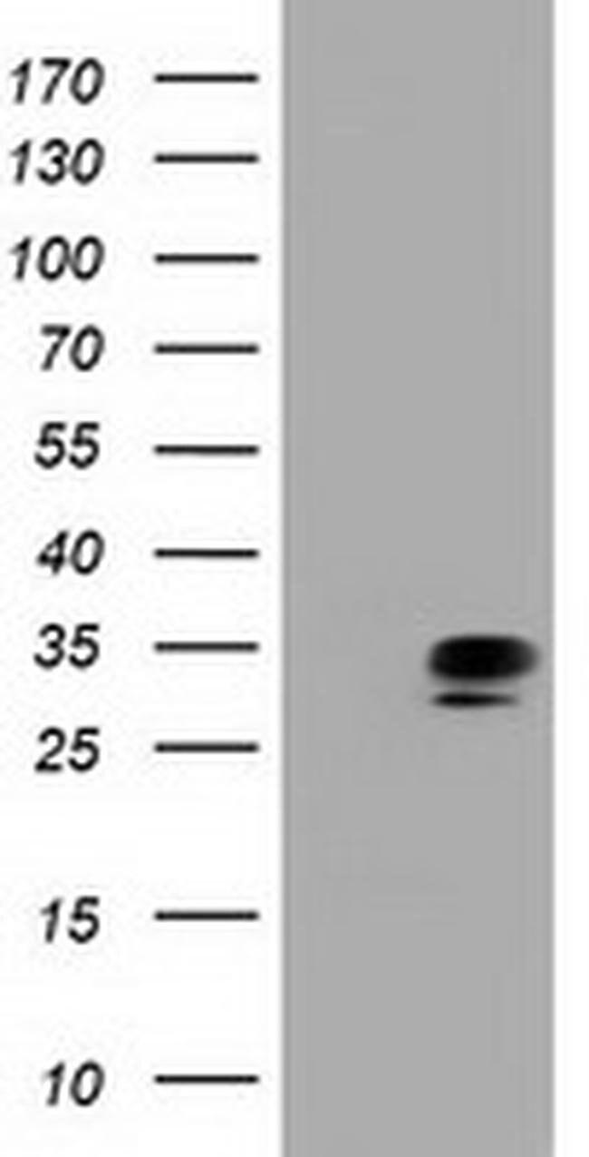 QPRT Mouse anti-Human, Clone: OTI3B3, liquid, TrueMAB  100 µL; Unconjugated