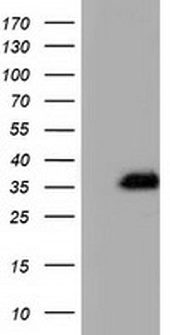 QPRT Mouse anti-Human, Clone: OTI4E6, liquid, TrueMAB  100 µL; Unconjugated