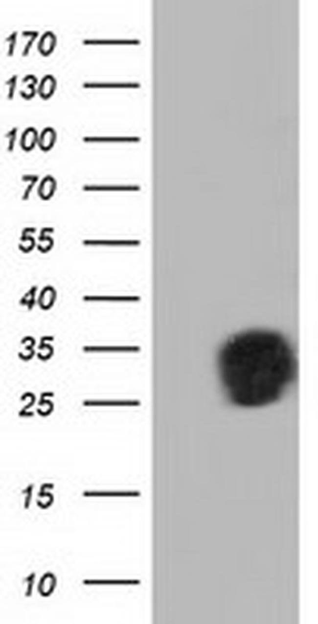 QPRT Mouse anti-Human, Clone: OTI4B4, liquid, TrueMAB  100 µL; Unconjugated