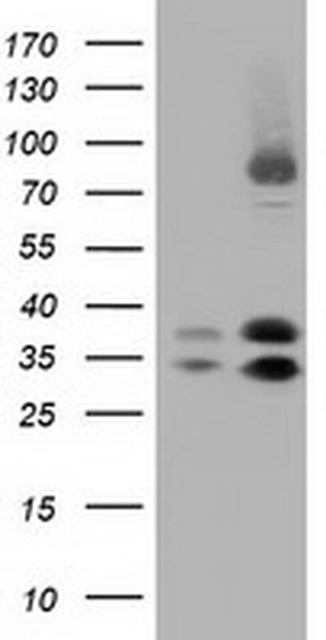 QPRT Mouse anti-Human, Clone: OTI2H4, liquid, TrueMAB  100 µL; Unconjugated
