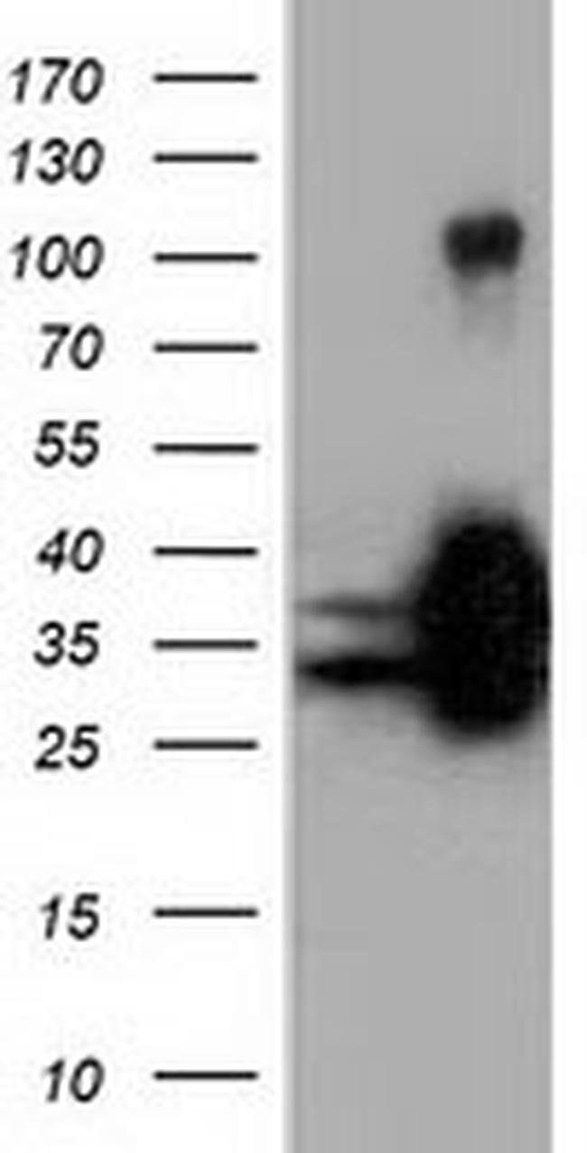 QPRT Mouse anti-Human, Clone: OTI7A8, liquid, TrueMAB  100 µL; Unconjugated