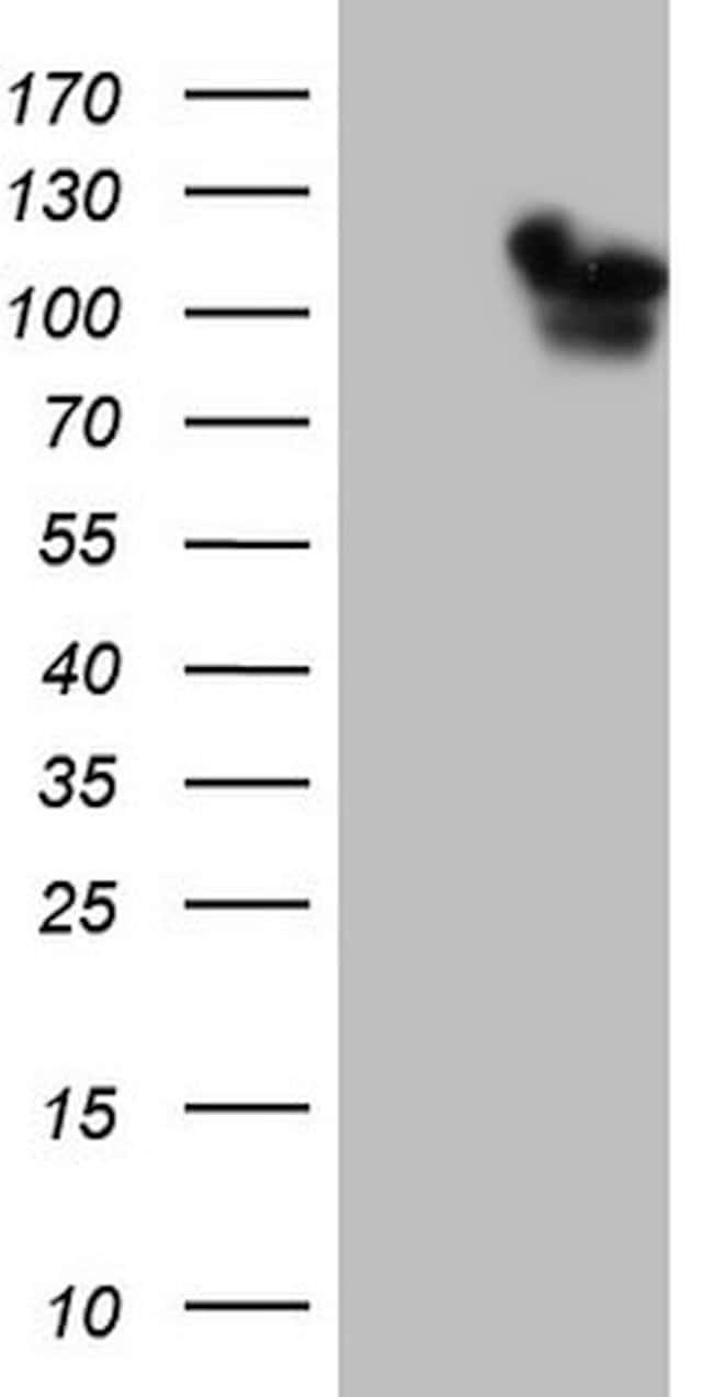 RAB11FIP4 Mouse anti-Human, Clone: OTI4C9, lyophilized, TrueMAB  100 µg;