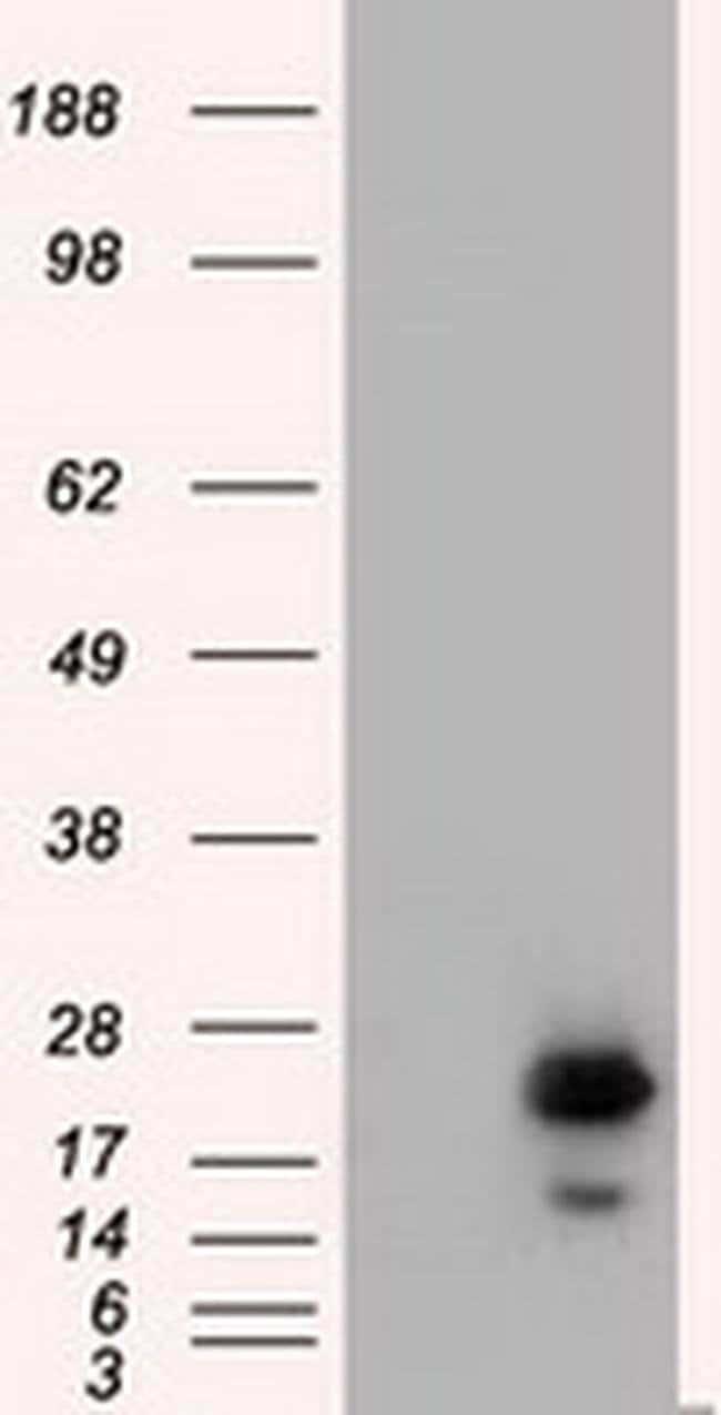 RAB17 Mouse anti-Human, Clone: OTI5E2, liquid, TrueMAB  100 µL; Unconjugated