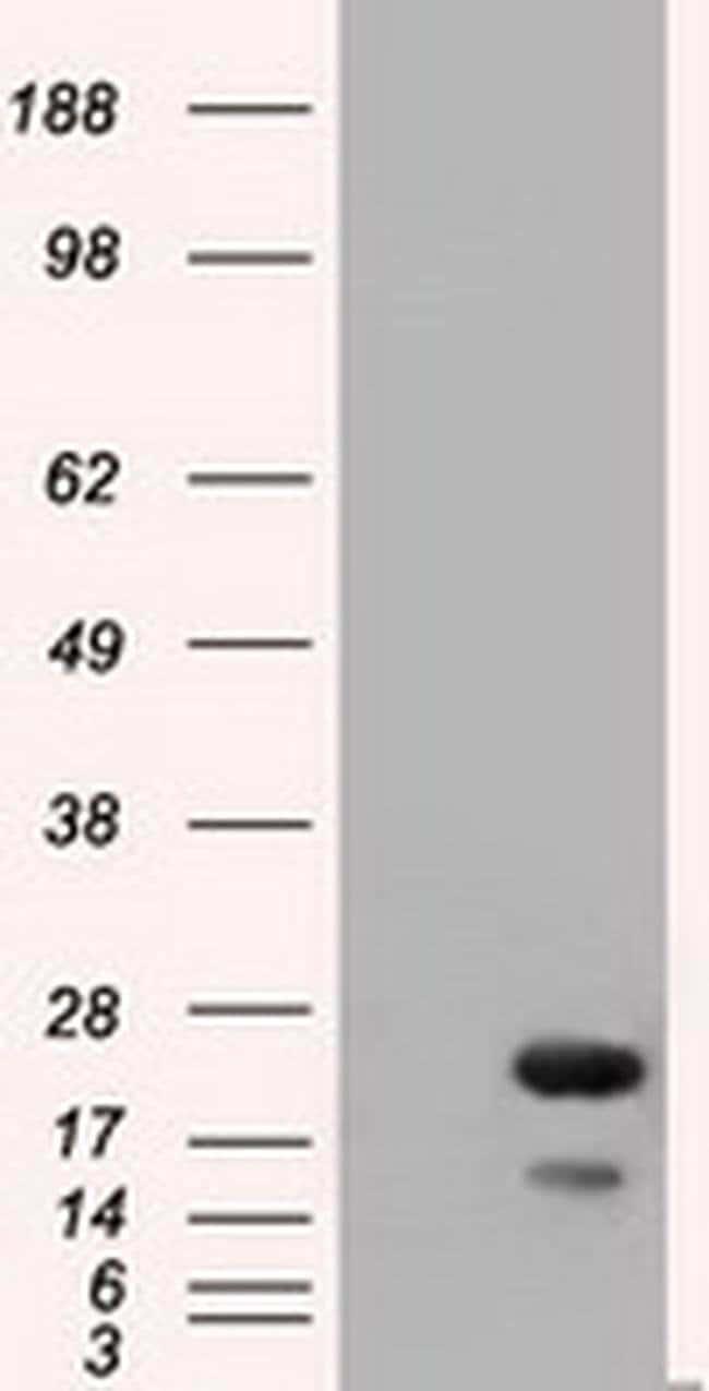 RAB17 Mouse anti-Human, Clone: OTI3A5, liquid, TrueMAB  100 µL; Unconjugated