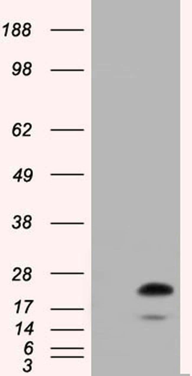 RAB17 Mouse anti-Human, Clone: OTI4E7, liquid, TrueMAB  100 µL; Unconjugated