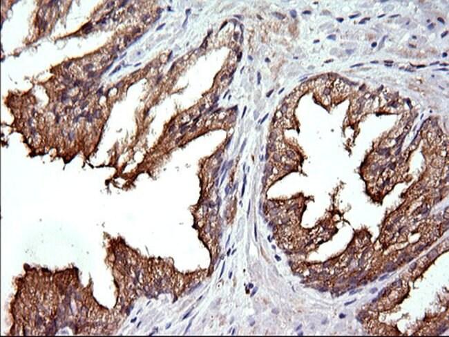 RAB21 Mouse anti-Human, Clone: OTI6G3, liquid, TrueMAB  100 µL; Unconjugated