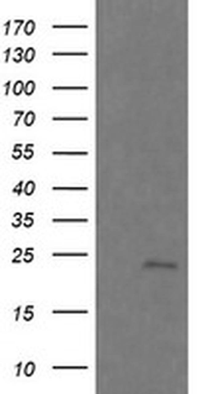 RAB21 Mouse anti-Canine, Human, Mouse, Rat, Clone: OTI6G1, liquid, TrueMAB