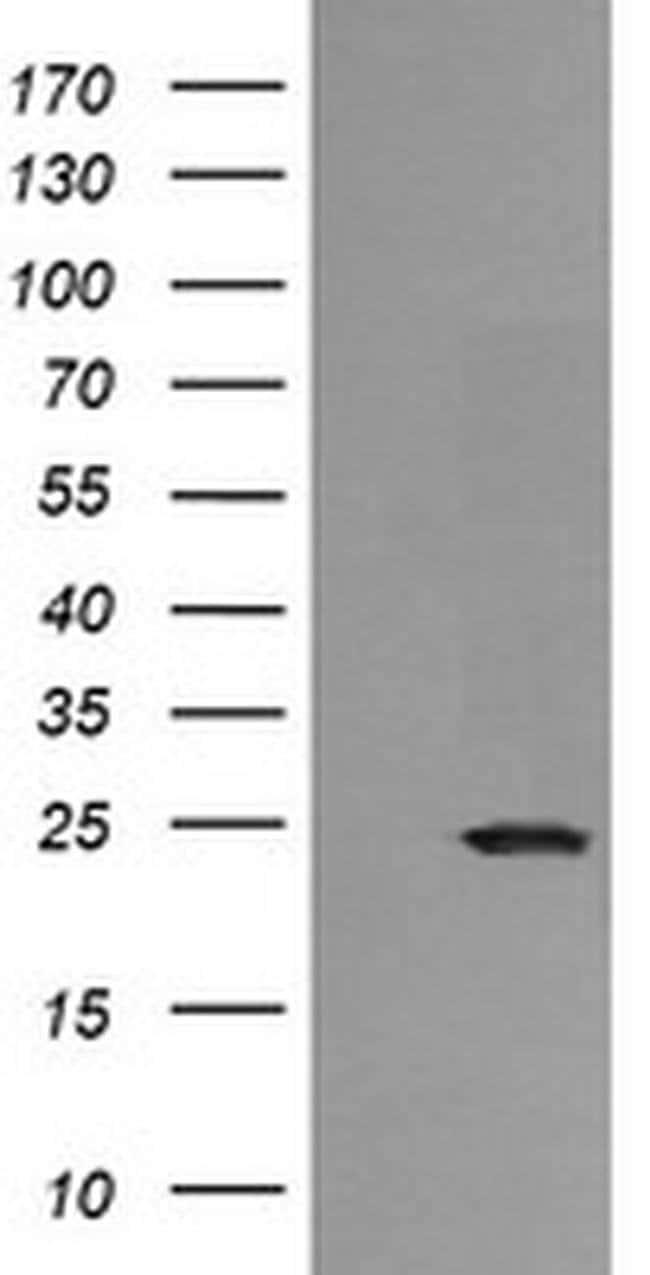 RAB21 Mouse anti-Human, Clone: OTI4A6, liquid, TrueMAB  100 µL; Unconjugated
