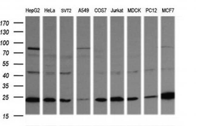 RAB21 Mouse anti-Canine, Human, Mouse, Rat, Clone: OTI6F11, liquid, TrueMAB