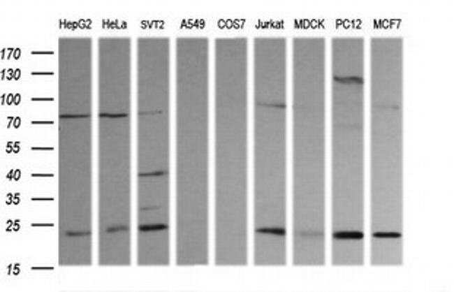 RAB30 Mouse anti-Canine, Human, Mouse, Rat, Clone: OTI3B7, liquid, TrueMAB