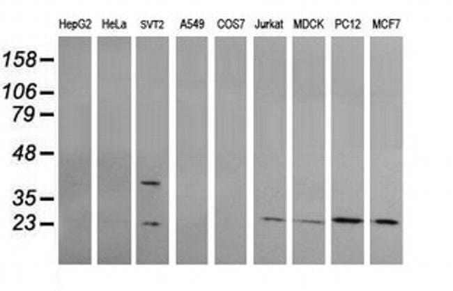 RAB30 Mouse anti-Canine, Human, Mouse, Rat, Clone: OTI1B2, liquid, TrueMAB