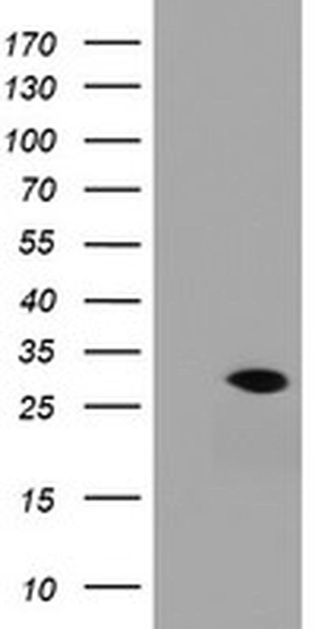 RAB30 Mouse anti-Human, Clone: OTI3C6, liquid, TrueMAB  100 µL; Unconjugated