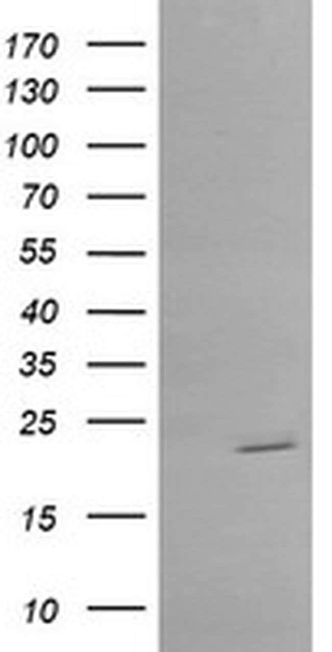 RAB30 Mouse anti-Human, Clone: OTI4B10, liquid, TrueMAB  100 µL; Unconjugated