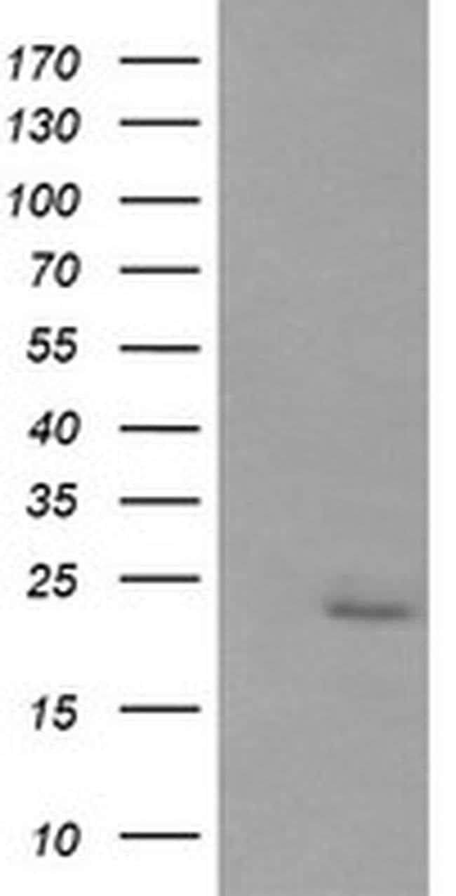 RAB30 Mouse anti-Human, Clone: OTI4B9, liquid, TrueMAB  100 µL; Unconjugated