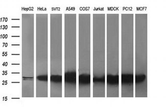 RAB30 Mouse anti-Human, Clone: OTI3B1, liquid, TrueMAB  100 µL; Unconjugated