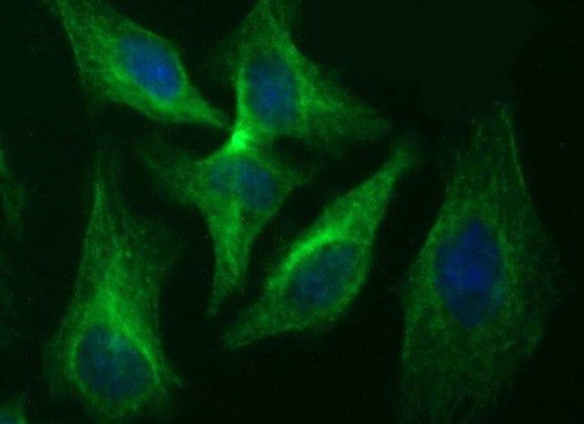 RAB37 Mouse anti-Human, Clone: OTI2B12, liquid, TrueMAB  100 µL; Unconjugated