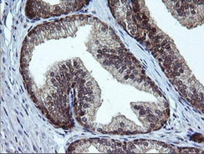 RAB37 Mouse anti-Human, Clone: OTI2F1, liquid, TrueMAB  100 µL; Unconjugated