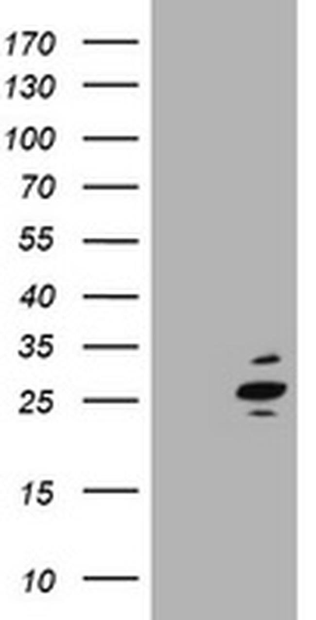 RAB37 Mouse anti-Human, Clone: OTI1D11, liquid, TrueMAB  100 µL; Unconjugated
