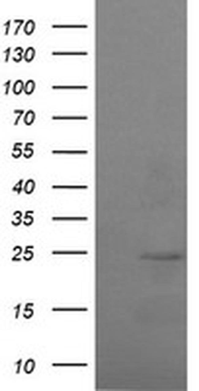 RAB37 Mouse anti-Human, Clone: OTI2F8, liquid, TrueMAB  100 µL; Unconjugated