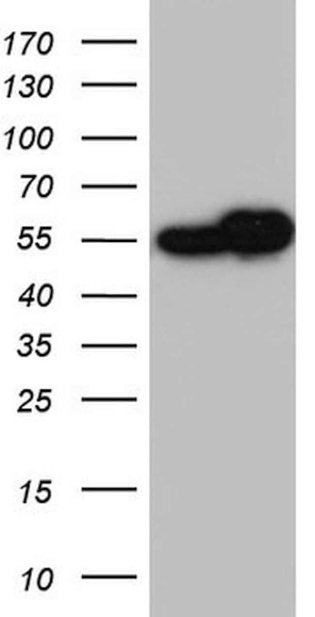 RAD23B Mouse anti-Human, Clone: OTI12C10, lyophilized, TrueMAB  100 µg;
