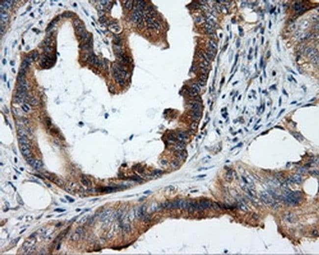 RALBP1 Mouse anti-Human, Clone: OTI1E2, liquid, TrueMAB  100 µL; Unconjugated