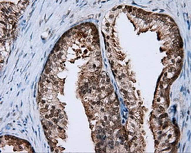 RALBP1 Mouse anti-Human, Clone: OTI6E8, liquid, TrueMAB  100 µL; Unconjugated