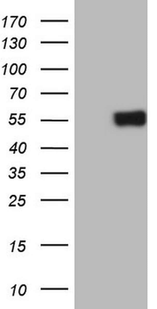 RARA Mouse anti-Human, Clone: OTI2D2, lyophilized, TrueMAB  100 µg;