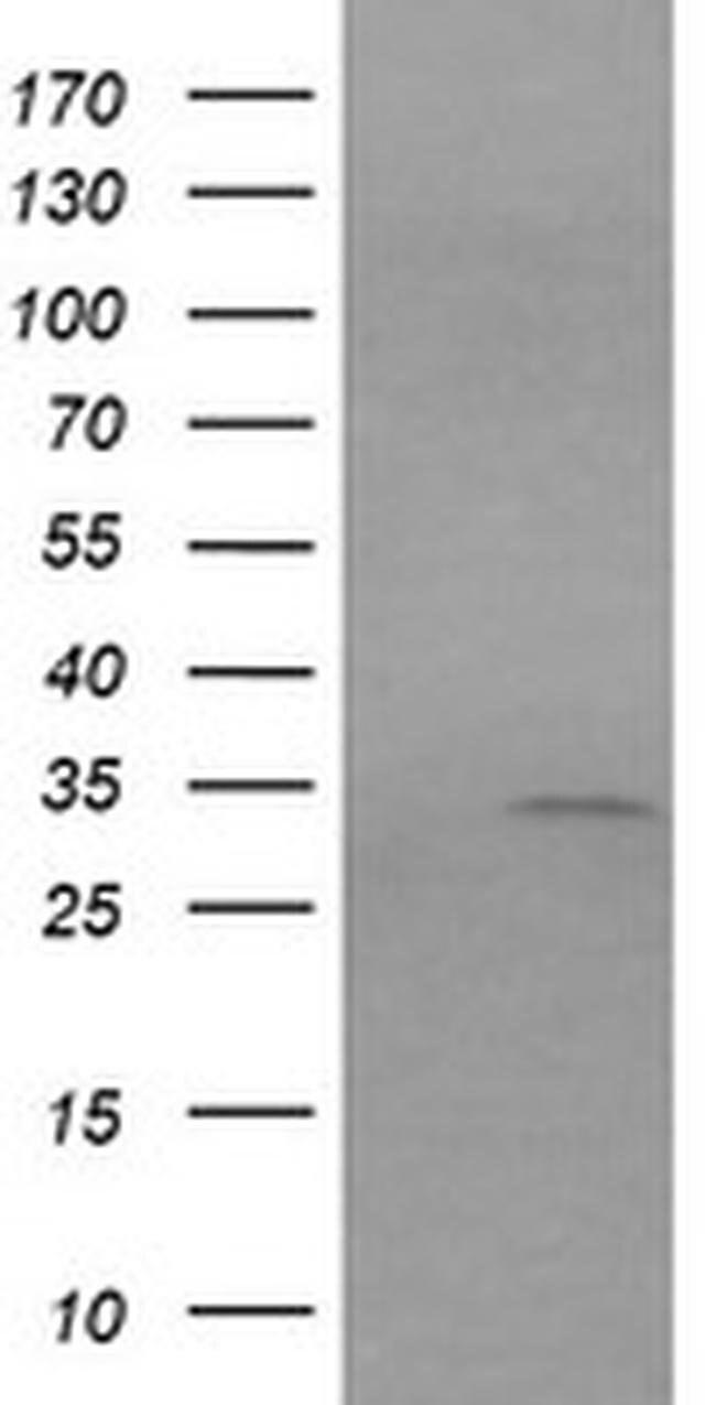 RARRES1 Mouse anti-Human, Clone: OTI1C9, liquid, TrueMAB  100 µL;