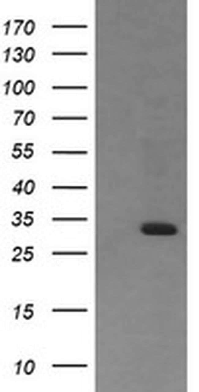 RARRES1 Mouse anti-Human, Clone: OTI1A6, liquid, TrueMAB  100 µL;
