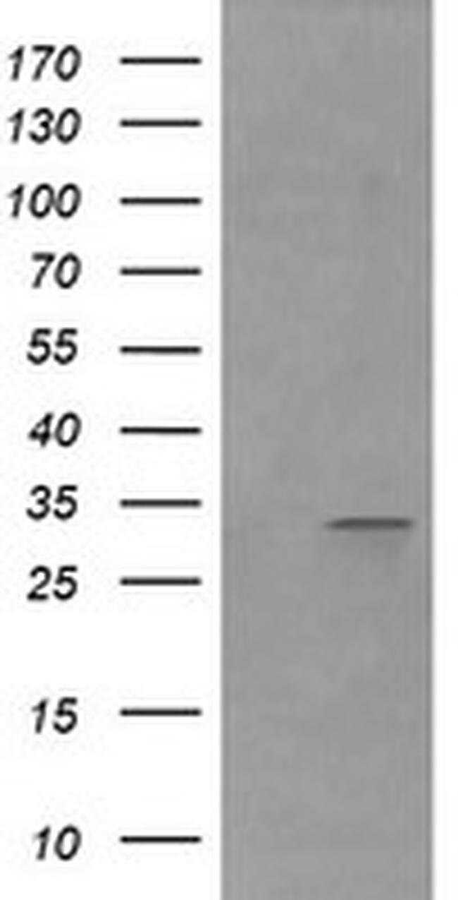 RARRES1 Mouse anti-Human, Clone: OTI2E12, liquid, TrueMAB  100 µL;