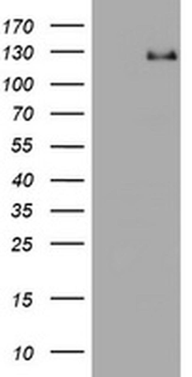 RASA1 Mouse anti-Human, Clone: OTI1A4, liquid, TrueMAB  100 µL; Unconjugated