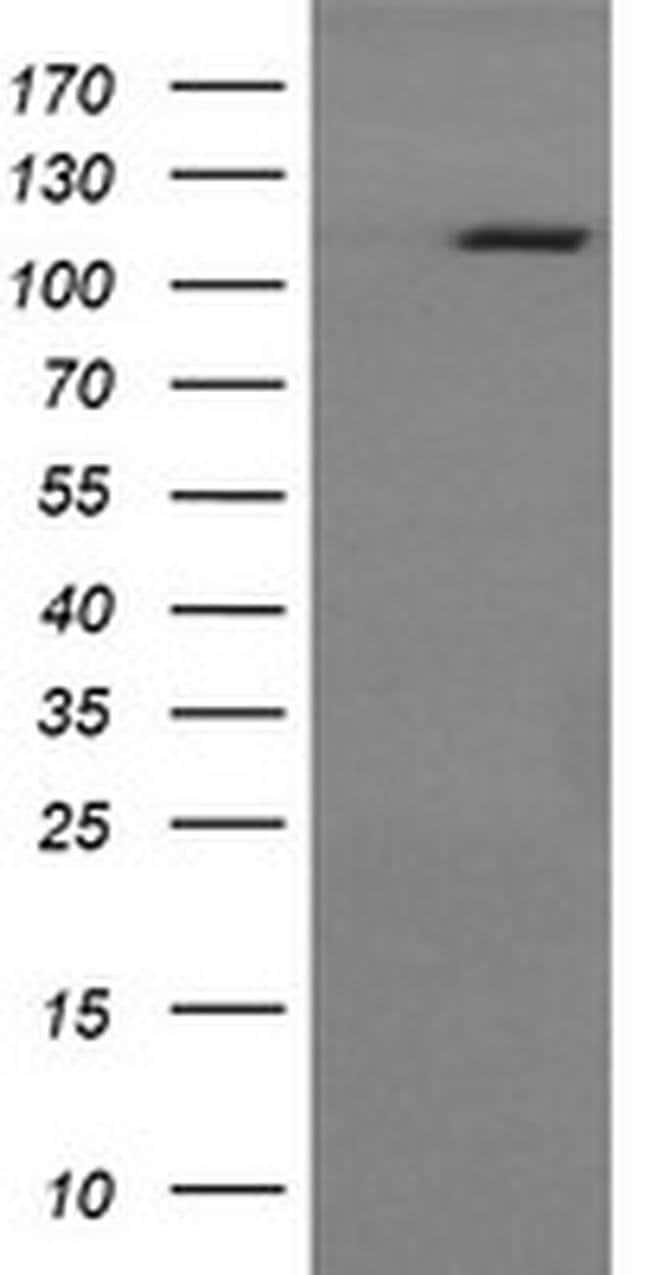 RASA1 Mouse anti-Human, Clone: OTI4E2, liquid, TrueMAB  100 µL; Unconjugated