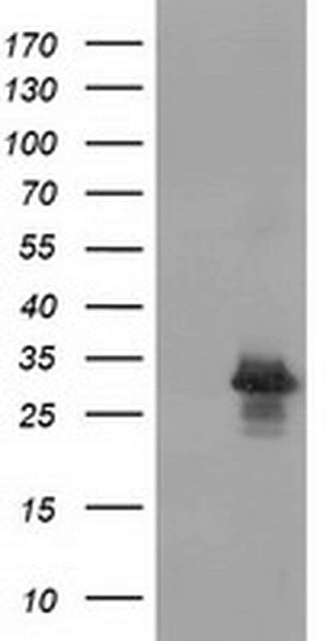 RASD2 Mouse anti-Human, Clone: OTI1G8, liquid, TrueMAB  100 µL; Unconjugated