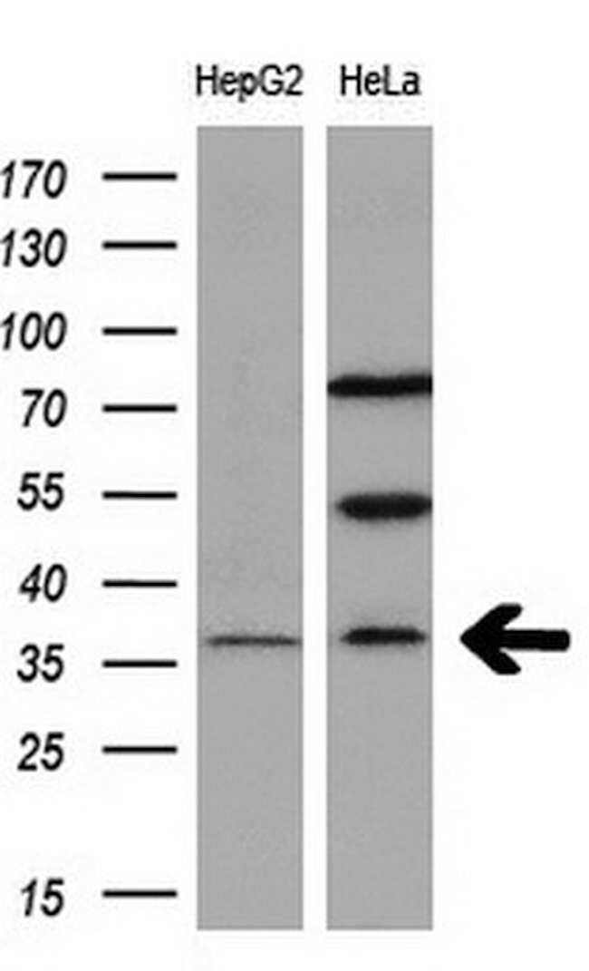 RASD2 Mouse anti-Human, Clone: OTI1H10, liquid, TrueMAB  100 µL; Unconjugated