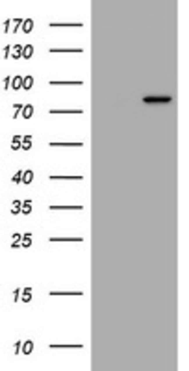 RASGRP3 Mouse anti-Human, Clone: OTI3C5, lyophilized, TrueMAB  100 µg;