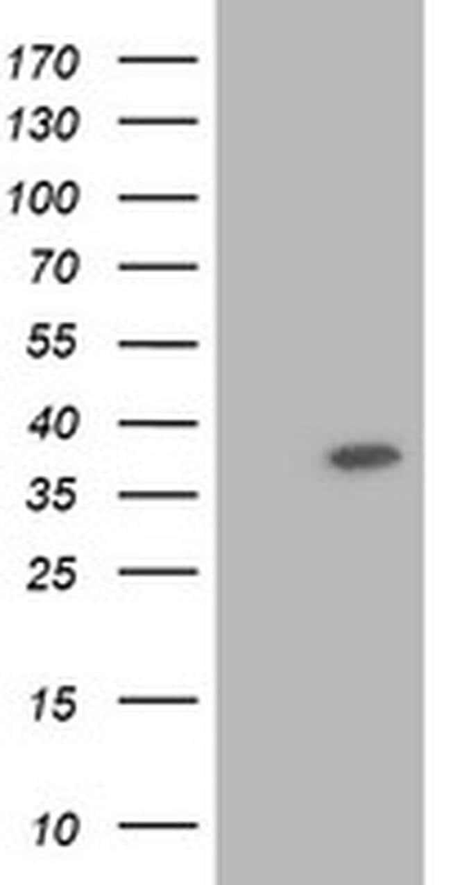 RASSF1 Mouse anti-Human, Clone: OTI8A11, liquid, TrueMAB  100 µL;