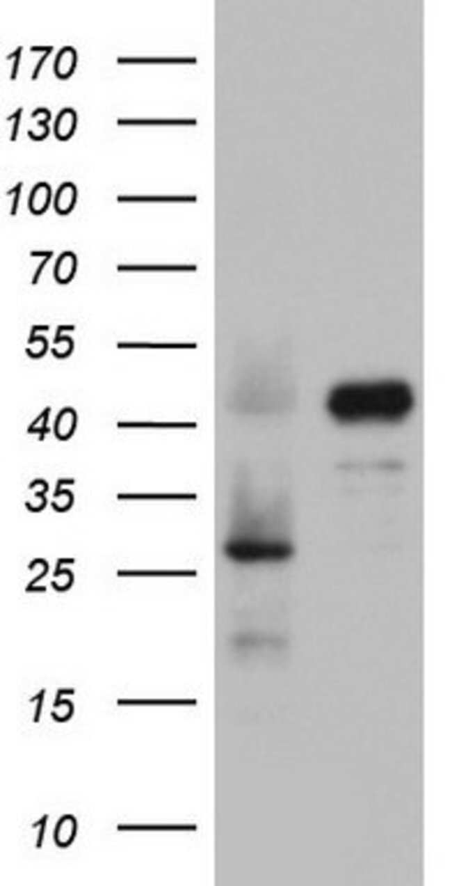 RBFOX1 Mouse anti-Human, Clone: OTI2C12, lyophilized, TrueMAB  100 µg;