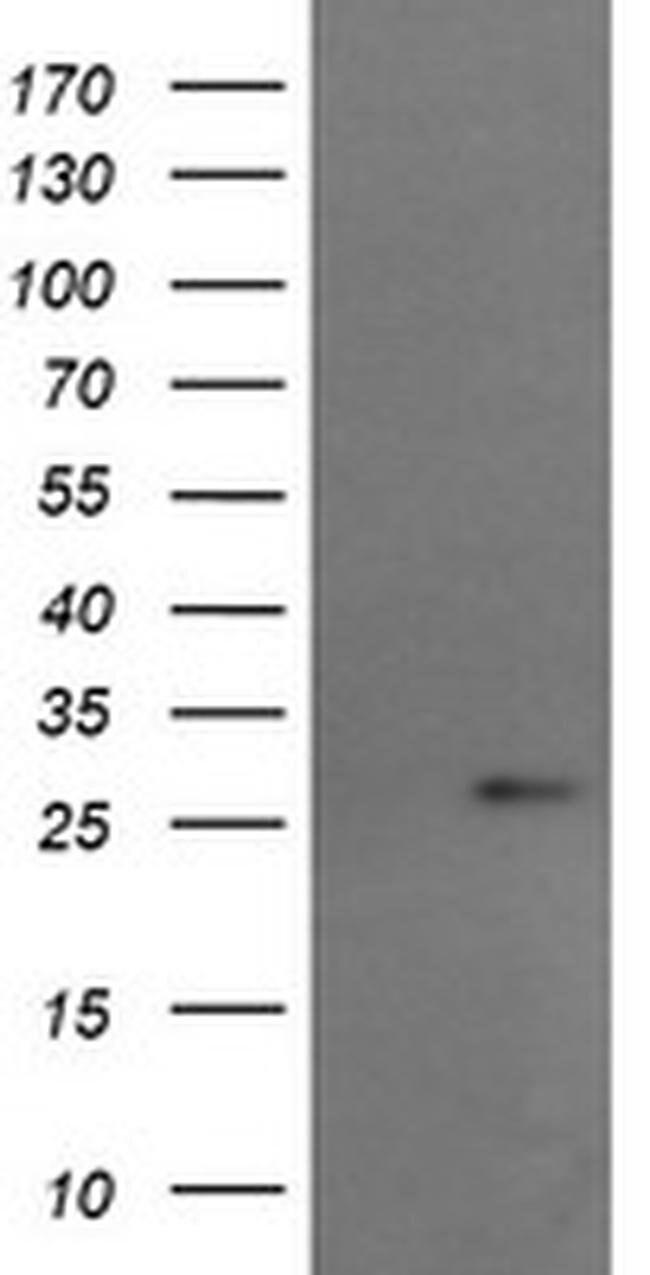 RCAN3 Mouse anti-Human, Clone: OTI1B2, liquid, TrueMAB  100 µL; Unconjugated