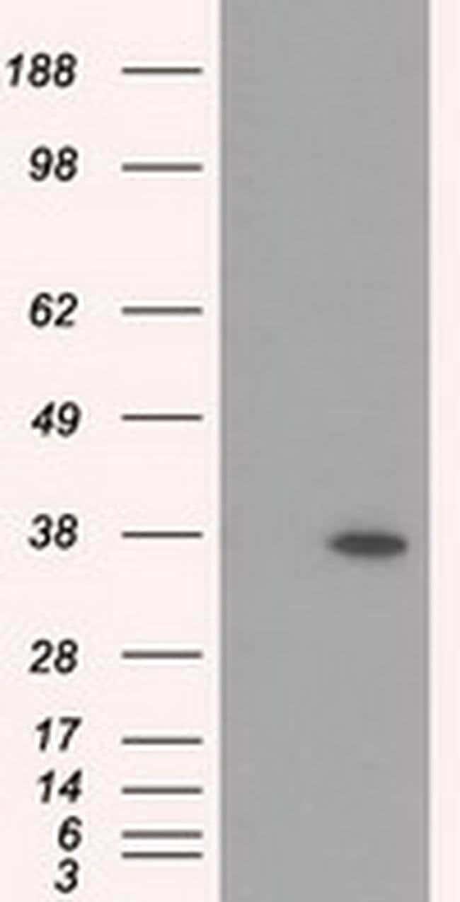 RDH11 Mouse anti-Human, Clone: OTI1B4, liquid, TrueMAB  100 µL; Unconjugated