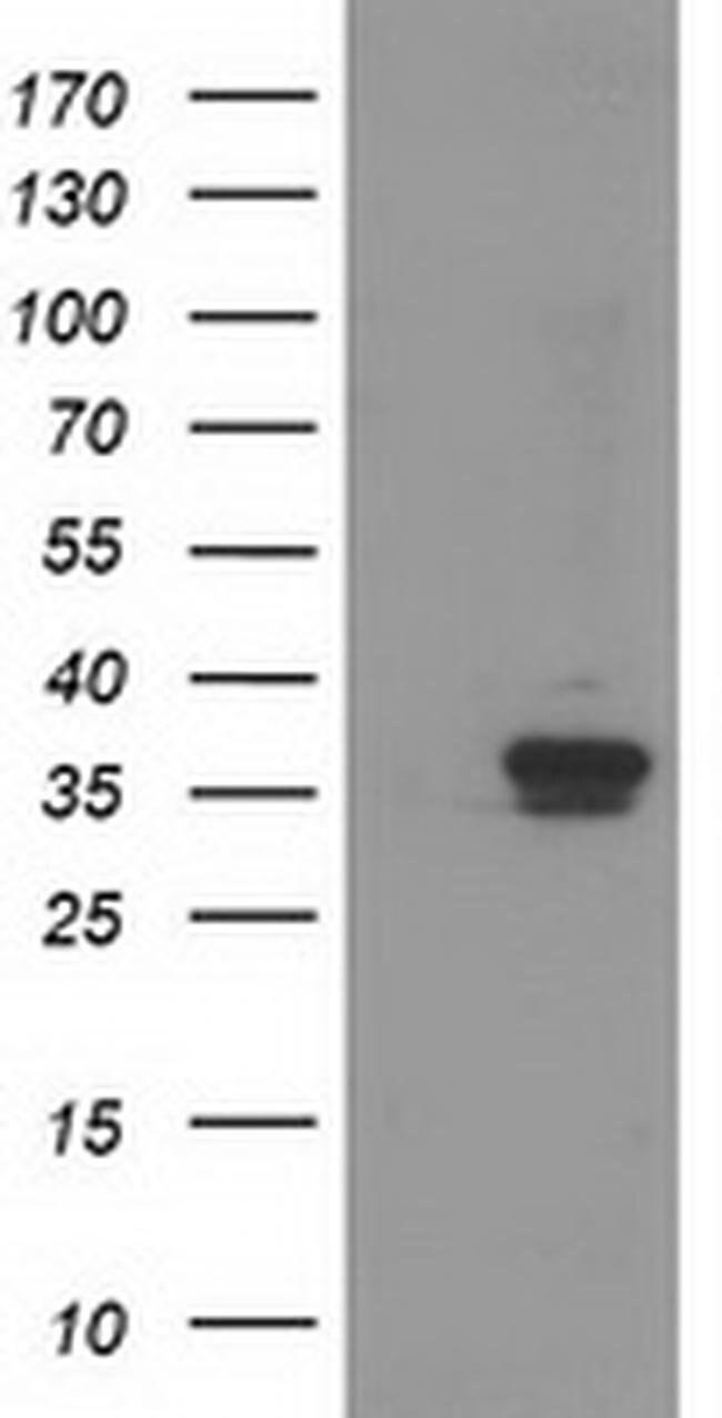 RDH14 Mouse anti-Human, Rat, Clone: OTI1A7, liquid, TrueMAB  100 µL;