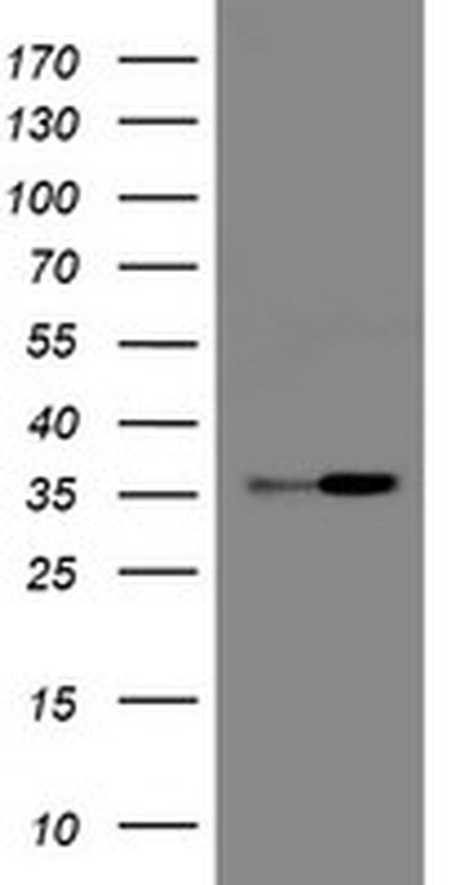 RFC2 Mouse anti-Human, Clone: OTI11C6, liquid, TrueMAB  100 µL; Unconjugated