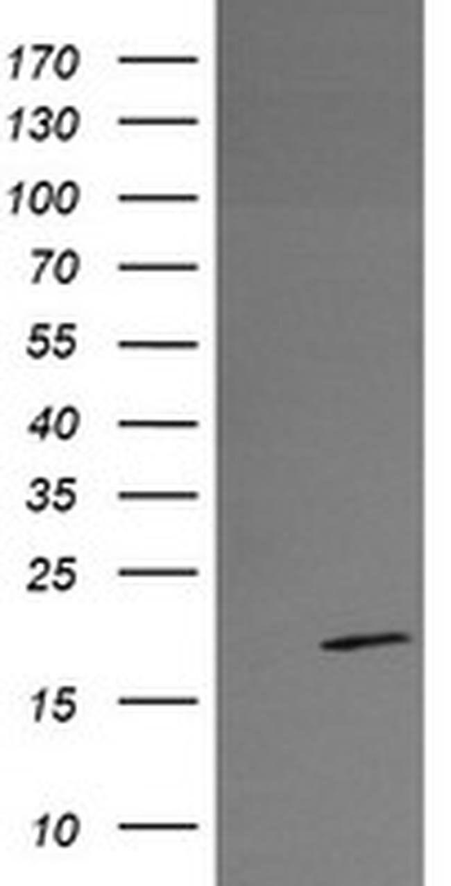 RFESD Mouse anti-Human, Clone: OTI2A7, liquid, TrueMAB  100 µL; Unconjugated