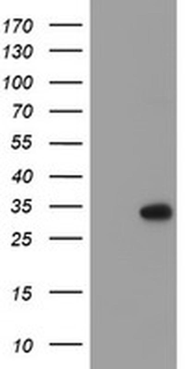 RFXANK Mouse anti-Human, Clone: OTI3C10, liquid, TrueMAB  100 µL;