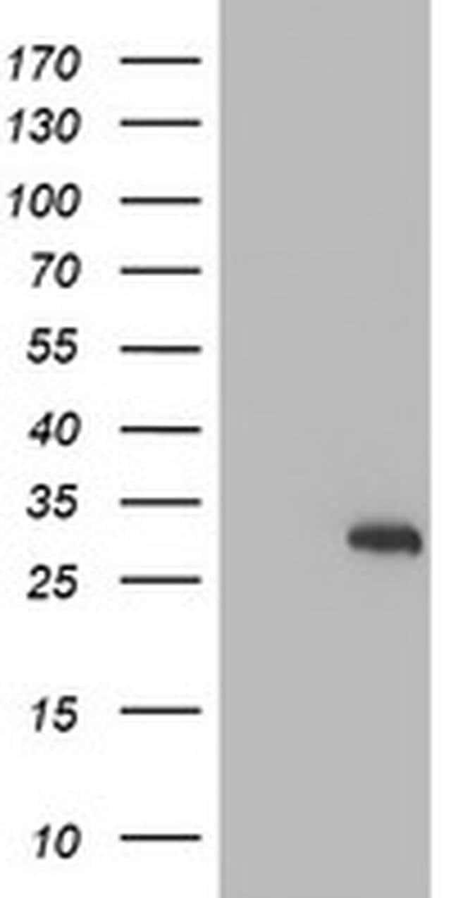 RFXANK Mouse anti-Human, Clone: OTI1G4, liquid, TrueMAB  100 µL; Unconjugated
