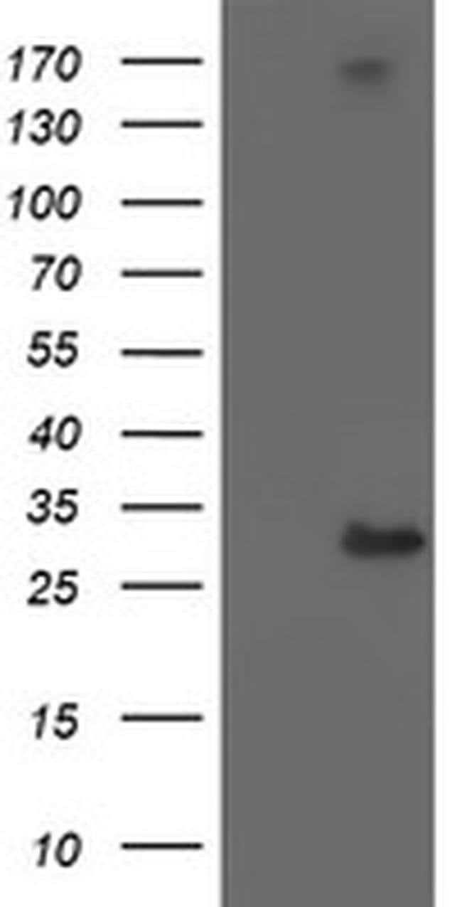 RFXANK Mouse anti-Human, Clone: OTI2B6, liquid, TrueMAB  100 µL; Unconjugated
