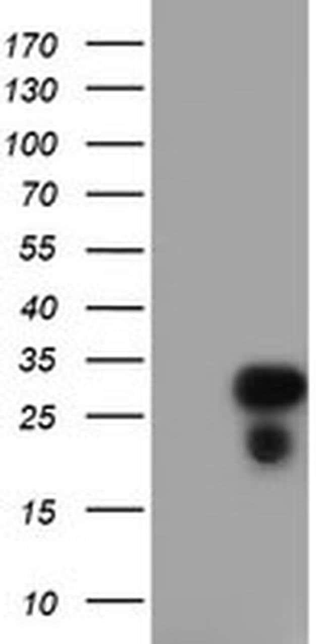 RGS16 Mouse anti-Human, Clone: OTI4C9, liquid, TrueMAB  100 µL; Unconjugated